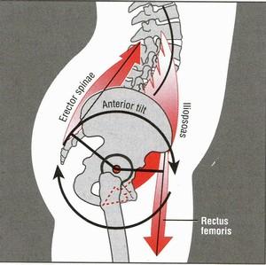 Anterior-Pelvic-Tilt-Diagram