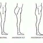 What is Posterior Pelvic Tilt?
